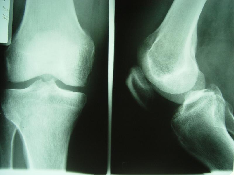 артроз суставов рентген картина